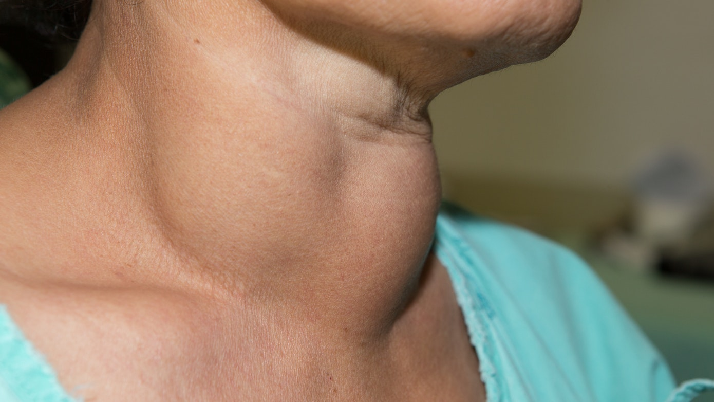 bad posture neck lump