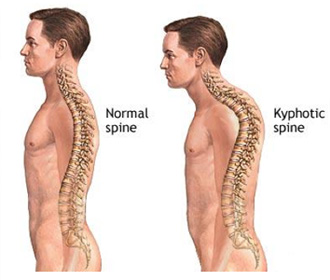 long term effects of poor posture