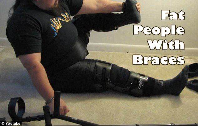fat people with knee brace