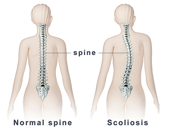 how to improve posture with scoliosis, how to have good posture with scoliosis