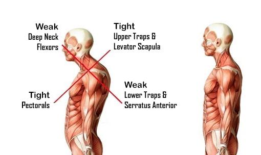 upper cross syndrome sleep position
