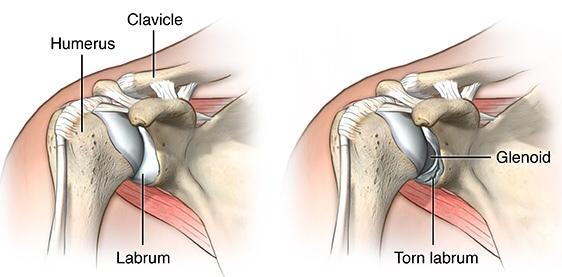 Best shoulder brace for torn labrum